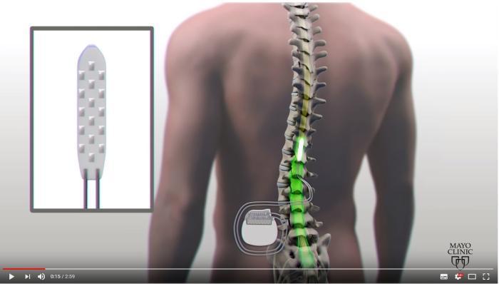 Paraplégico volta a andar com a ajuda de implante elétrico