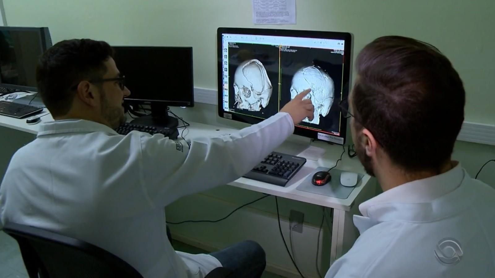 Médicos usam impressora 3D para reconstituir o crânio de um paciente em Santa Maria