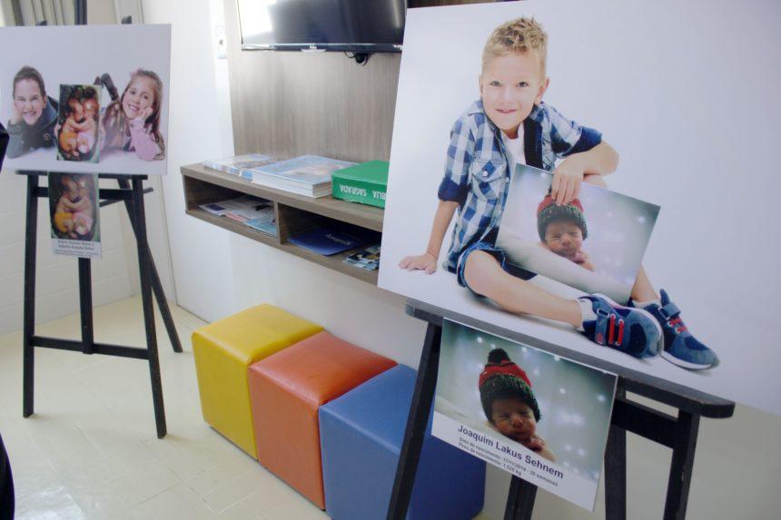 Exposição dá início às atividades alusivas ao Mês da Prematuridade