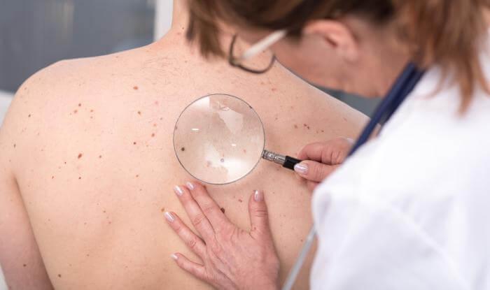Consulta pública sobre tratamentos modernos para o câncer de pele no SUS está aberta à população